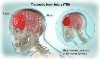 Lateral view of skeleton and brain, showing a brain injury; SOURCE: Screenshot from Concussion Video; V1004