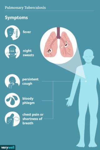 Pulmonary TB